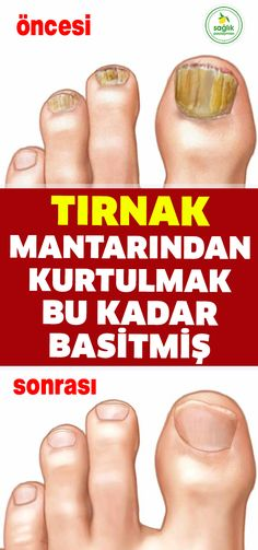 Bu baharatın şimdiye kadar birçok faydasını anlattık ama şimdiki faydası… We have described many benefits of this spice so far, but the current benefit is related to nail fungus. Almost one in two people to remove the nail fungus was… Continue Reading → Herbal Remedies, Natural Remedies, Get Rid Of Warts, Remove Warts, Brown Spots On Skin, Reduce Cellulite, Vicks Vaporub, Chronic Stress, Nail Fungus