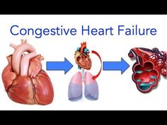 Congestive Heart Failure - Everything you need to know. This video tutorial was brought to you by: Ali Reza Feili M.D. More info on Congestive Heart Failure:...