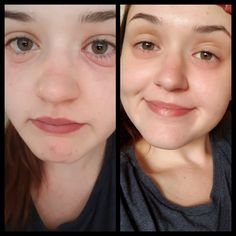 How Can CBD Oil Help With Eczema for more informstion visit: myeczemarecovery. Essential Oils For Eczema, Find Someone Who, Health, Health Care, Salud