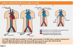 ECMO Circuit, Cannulation and Conduct