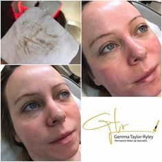 Second session of her Dermaplane course, her skin was a little dry this time around so we opted for the oilaplane which is a natural enriched balm being used. My client will carry on with her Teoxane skin care range from home and will be back for her third treatment next month.  #fullyinsured #DermplanePro #fullylicenced #permanentmakeupartist #Specialist #skinspecialist #Teoxane #skincareregime #beauty #beautyproducts #clearskin #vellushair #beautyawards #RHA #Collagen #cosmetics…