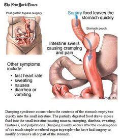 Dumping syndrome #nursing
