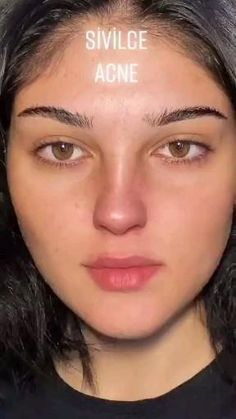 Good Skin Tips, Clear Skin Tips, Clear Skin Face, Face Skin Care, Beauty Tips For Glowing Skin, Beauty Skin, Beauty Care Routine, Skin Care Remedies, Homemade Skin Care
