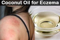 Eczema is a skin disorder that results in inflammation of the skin and dry patches on the first layer of the skin called epidermis. It is a skin condition that reoccurs by causing a lot of physical discomfort and itching. It can become extremely bad at th