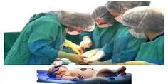 Painless cesarean section   Anesthesia