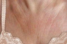 Wrinkles on the chest area or cleavage can keep a woman from wearing bikinis and tops with plunging necklines with utmost confidence and command. Sometimes those unsightly lines can be temporary, but Organic Skin Care, Natural Skin Care, Wrinkle Remedies, Cosmetic Procedures, Face Facial, Prevent Wrinkles, Body Lotions, Face And Body, Home Remedies