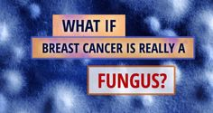 What If Breast Cancer Is Really A Fungus?