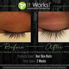 It Works Before and After Photos with the It Works Body Wraps, Facial Wraps, Weight Loss System, Hair Skin & Nails, and WOW to Wipe out Wrinkles in 45 seconds! How To Grow Eyelashes, Longer Eyelashes, Fake Eyelashes, Itworks Hsn, Best Lengthening Mascara, It Works Body Wraps, It Works Marketing, It Works Distributor, Longer Hair Faster
