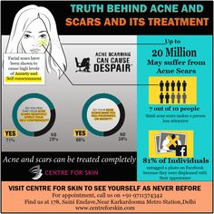 "Truth behind acne and scars and its treatment. Centre For Skin have proven results in treatment of Acne and Scars. Visit us and get ready for blemish free skin like never before. ""Your skin deserves nothing but the best"" Visit http://www.centreforskin.com/ for more information or Call us on 9711374342 to book an appointment ‪#‎skin‬ ‪#‎acne‬ ‪#‎scars‬ ‪#‎treatment‬ ‪#‎dermatologist‬ ‪#‎carefree‬"