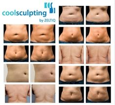 Get the famous Freeze the Fat treatment for 25% OFF! Why not give it a try? You will not regret it! Call us at (972) 755-9222! http://freezethefatdfw.com/freeze-the-fat-february-special-25-off-coolsculpting/
