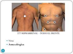 227 SUPRARRENAL –TODO EL FRENTE  Virus  Asma alérgica 34