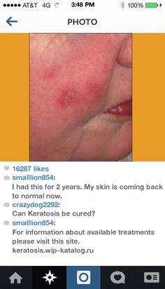 Solar Keratosis Home Treatment 080856 - Keratosis. Keratosis Pilaris Cure!