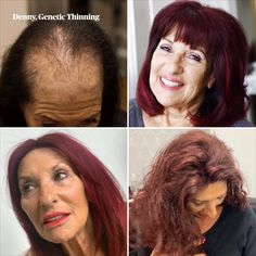 """""""The team at Hair Solved are so reassuring - they make me feel like me again."""" Denny has been a client at our Manchester Salon since it opened in 2007 and loves changing her system to suit her style and personality #enhancersystem #geneticthinning"""
