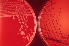 bacteria, throat culture on blood agar and tellurite medium; black colonies are Corynebacterium diphtheriae