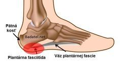 Pain Remedies Natural Remedies for Plantar Fasciitis (Jogger's Heel) - Find out how to get rid of Plantar Fasciitis / Jogger's Heel and how to prevent it. Stretches Before Workout, Calf Stretches, Ankle Pain, Heel Pain, Foot Pain, Remedies For Plantar Fasciitis, Natural Headache Remedies, Calf Muscles, Feet Care