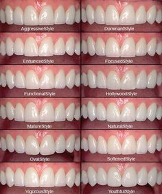 Family cosmetic dentistry professional teeth whitening kit,what whitens teeth oral health care centre,dental care pictures hardened plaque removal. Veneers Teeth, Dental Veneers, Cosmetic Dentistry Procedures, Beautiful Teeth, Porcelain Veneers, Teeth Shape, Perfect Teeth, Smile Makeover, Dental Health