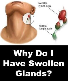 Why Do I Have Swollen Glands?  http://positivemed.com/2014/12/09/swollen-glands/