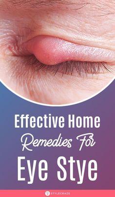 Eye Stye Remedies, Home Health Remedies, Natural Cough Remedies, Natural Health Remedies, Natural Cures, Herbal Remedies, Natural Hair, Treating A Stye, Natural Remedies