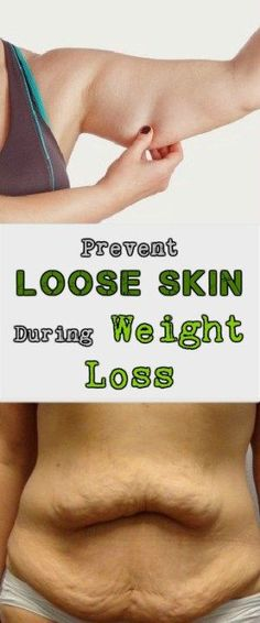 Prevent Loose Skin During Weight Loss