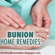how to not get bunions