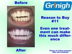 https://www.amazon.com/s/ref=sr_in_-2_p_89_21?fst=as%3Aoff&rh=n%3A3760911%2Cn%3A10079992011%2Cn%3A3778441%2Ck%3Ateeth+whitening%2Cp_89%3AGrinigh&bbn=3778441&keywords=teeth+whitening&ie=UTF8&qid=1471337644&rnid=2528832011