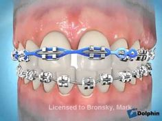 Orthodontists use closed chain alastics to help close spaces for patient's with braces. These closed chains usually come in stainless steal and clear colors. Dental Braces, Teeth Braces, Dental Care, Dental Videos, Brace Face, Braces Colors, Applis Photo, Teeth Care, Al Dente