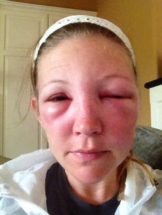 24 Hours after a bee sting to the eye.  Information on treatments and symptoms of bee stings by the eye.  Ouch!