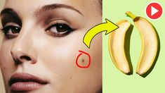 How To Get Rid Of Moles On Face Naturally At Home - Remedies One