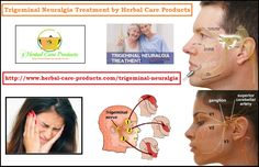 Trigeminal Neuralgia Symptoms, Causes and Treatment by Natural Herbal Remedies