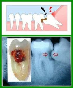 Decay...This is why wisdom teeth are removed even if there is no pain! Horizontally PB impaction.