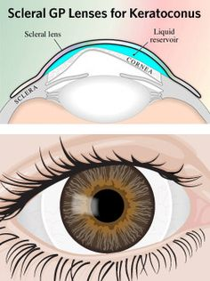 "Scleral contacts are large-diameter gas permeable contact lenses specially designed to vault over the entire corneal surface and rest on the ""white"" of the eye (sclera). In doing so, scleral lenses functionally replace the irregular cornea with a perfectly smooth optical surface to correct vision problems caused by keratoconus and other corneal irregularities."