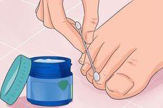 Domácí léčba plísňové infekce nehtů - léto se blíží, zbavte se jí včas, než vytáhnete otevřenou obuv Listerine, Health Fitness, Water Bottle, Drinks, Alcohol, Drinking, Beverages, Water Bottles, Drink