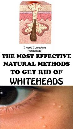 Whiteheads are a nightmare for every woman. How to get rid of them? Here are the most effective natural methods to get rid of this problem once and for all.