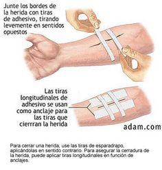 heridas tratamiento -