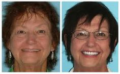 Implant dentures are life changing