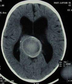 Vein of Galen aneurysm.