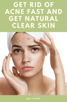 Clear Acne Overnight, Natural Acne Treatment, How To Get Rid Of Acne, Acne Treatment