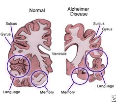 an examination of the causes symptoms treatment and researches on alzheimers disease What are the symptoms and stages to alzheimers alzheimer's disease is the most common cause of risk of alzheimer's disease there is research ongoing.