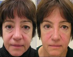 Tips To Massage Away Laugh Creases By Employing Facial Restoration Exercise Regimens
