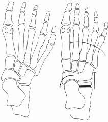 Note: Same name as procedures indicated for clubfoot and lateral ankle instability. <br/> <br/> Indications: Pes valgus foot deformity To lengthen calcaneus<br/> <br/> Procedure:<br/>