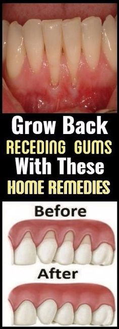 Grow Back Your Receding Gums With These Natural Remedies ! | Organizing Ideas