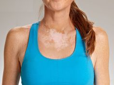 Vitiligo is an unpredictable disease. Learn about its causes and treatments @ http://bit.ly/1HpOHV1 #Imperialhealth #London #Skincare #healthcare