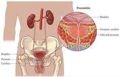 Obat herbal prostatitis >> Prostatitis adalah peradangan yang terjadi pada kelenjar prostat. Karena prostat hanya dimiliki oleh pria, makan prostatitis juga hanya diderita  oleh pria. Kelenjar kecil yang terletak di dasar kandung kemih dan terbungkus urethra ini pada kondisi normal berfungsi untuk memproduksi dan mengeluarkan cairan seperti susu yaitu semen yang akan ditambahkan pada sperma dan sebagai transportasi sperma saat klimaks.