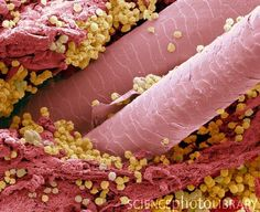 """""""Lymphocytes in hair follicle, coloured scanning electron micrograph (SEM). Large numbers of lymphocytes (yellow) are seen in inflamed and necrotic tissue at the base of hair shafts (red). This condition, where pus forms in skin diseases, is also known as pyoderma. Causes may be an infection, or an autoimmune disorder such as pyoderma gangrenosum. x3000 when printed at 10 centimeters wide."""" Large granular lymphocytes include natural killer cells. Small lymphocytes consist of T cells and B…"""
