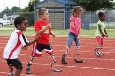 Prosthetic Limbs designed for all ages.