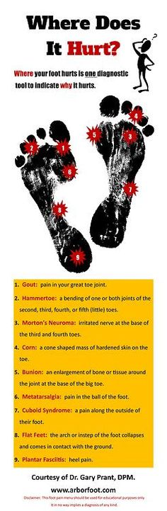 Causes of Foot Pain Where Does It Hurt? guide to foot pain by Arbor Foot Health Center Health And Beauty, Health And Wellness, Health Tips, Health Care, Arthritis, K Tape, Morton's Neuroma, Sore Feet, Podiatry
