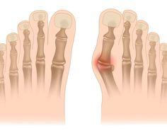 Les oignons, ou hallux valgus sont en fait des dépôts de sel (urate de sodium). Leur formation est déclenchée par la grippe, l'amygdalite, la goutte, un métabolisme pauvre, une mauvaise nutrition, l'inflammation articulaire aiguë et le port de chaussures inconfortables. Les oignons sont un véritable «cauchemar» –