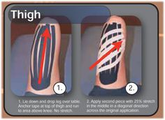 Kinesiology taping instructions for edema in the thigh from Rocktape.  Rocktape precut strips can be found online at: http://www.theratape.com/rocktape-precut-edema-strips.html