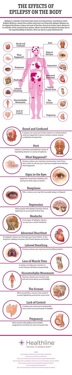 14 Effects of Epilepsy on the Body