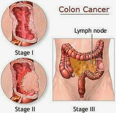 Colon Cancer Symptoms - How to Know If You Have Colorectal Cancer